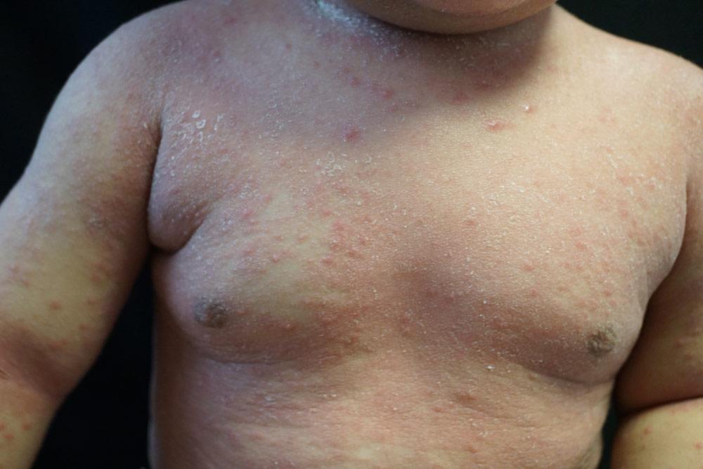 dermatitis-atópica