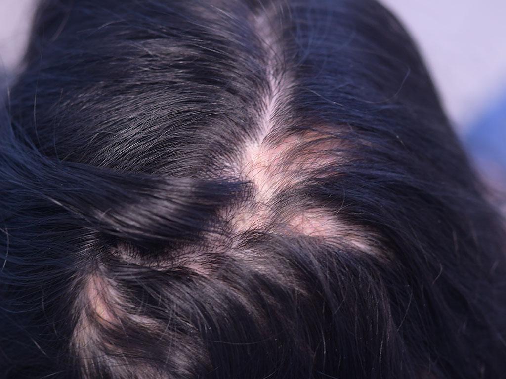 lupus-cutaneo-cronico